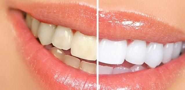 第203期【童漾小妙招】无需洗牙,教你5分钟消除牙垢,都试试吧!