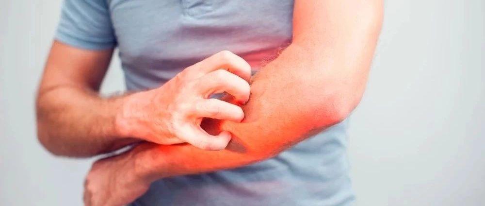 一招解决「七年之痒」!特应性皮炎药物Dupilumab步入中国,深度解读治疗中重度「难忍之痒」的全新利器
