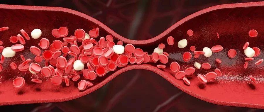 血栓是吃出来的,这四种食物一定要少吃或不吃!