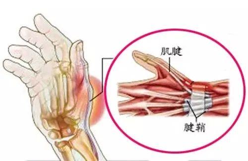 腱鞘炎有哪些表现?自己如何判断?