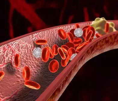 三位院士警告:99%的血栓无征兆,记住一个字就能让你一生无栓!