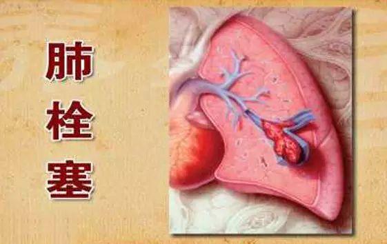 99%的血栓无征兆!记住一个字,让你一生无栓!