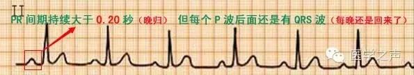這樣教你看心電圖,再也沒理由看不懂!