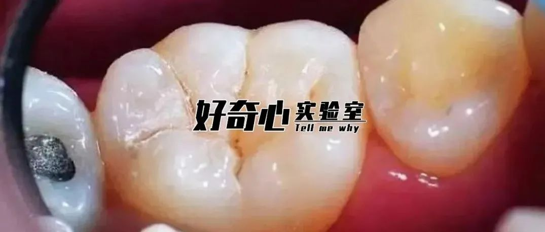 你知道你的牙缝有多臭吗?