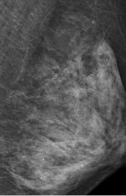 按摩乳房引發大搶救!這個病例為所有女性敲響警鐘