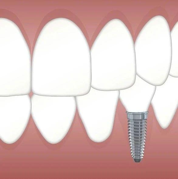 做种植牙手术的过程是不是很痛苦?
