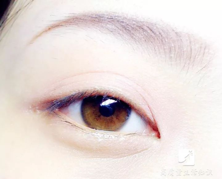 眼睛出現這8種症狀要當心,這可能是大病的徵兆!