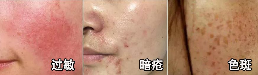 """咽炎干咳止不住!用它,1个月排清""""肺毒"""",提高免疫不中招!"""